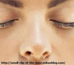 عمل جراحی کوچک کننده بینی