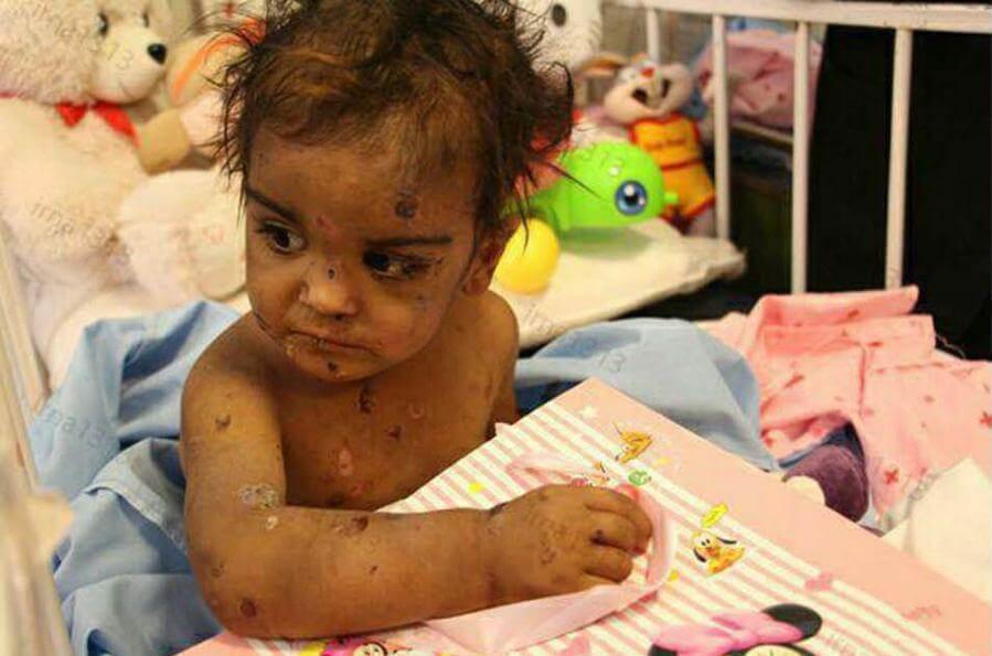 عکس شکنجه ستایش در رفسنجان | علت شکنجه کودک سه ساله | جزئیات و تصاویر