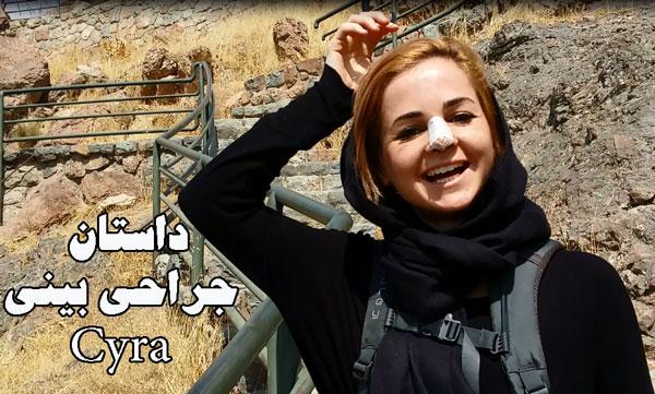 بهترین جراح بینی در ایران - تهران - دکتر حسنانی