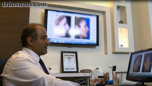 مشاوره جراحی بینی با دکتر حسنانی