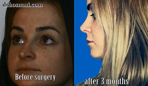 جراحی بینی - عکس قبل و بعد از عمل