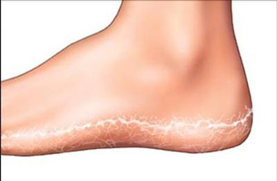 درمان ترک کف پا با روش های خانگی