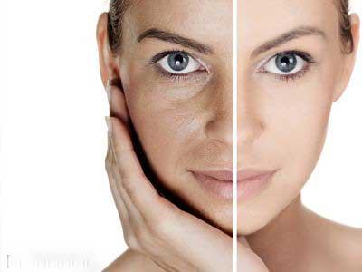 با اين کارها پوست خود را خراب نکنيد