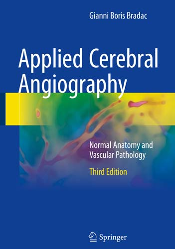 Applied Cerebral Angiography