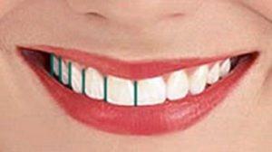 نسبت طلایی لبخند
