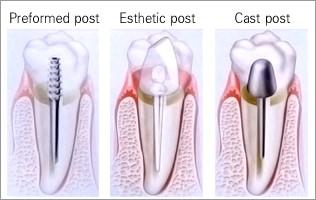 پست دندان