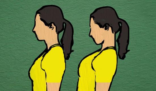 درمانهای خانگی برای بهبود رگبهرگ شدن گردن