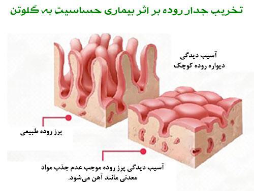 تخریب جدار روده بر اثر حساسیت به گلوتن
