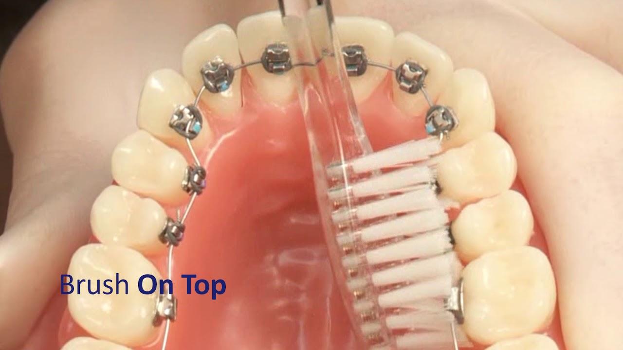 مشکلات بهداشت دهان