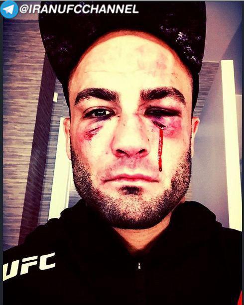 نظر کانر مک*گرگور در مورد ژوزه آلدو|پیام ادی آلوارز بعد از شکست در UFC On Fox30|علی عبدالعزیز: مصاحبه درباره  دستمزد حبیب