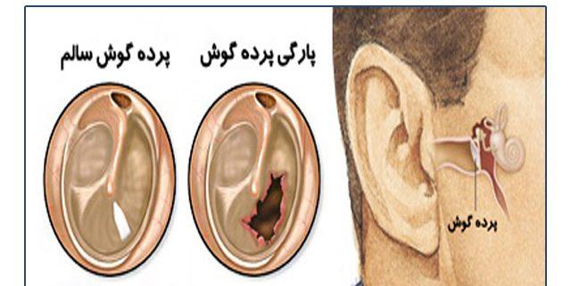 تشکیل و تکامل گوش