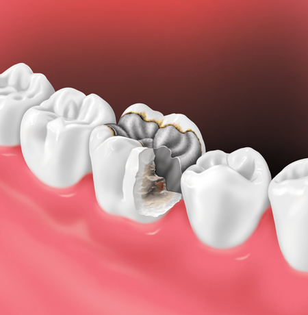 تعویض دندان