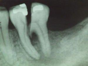 پرشدگی دندان