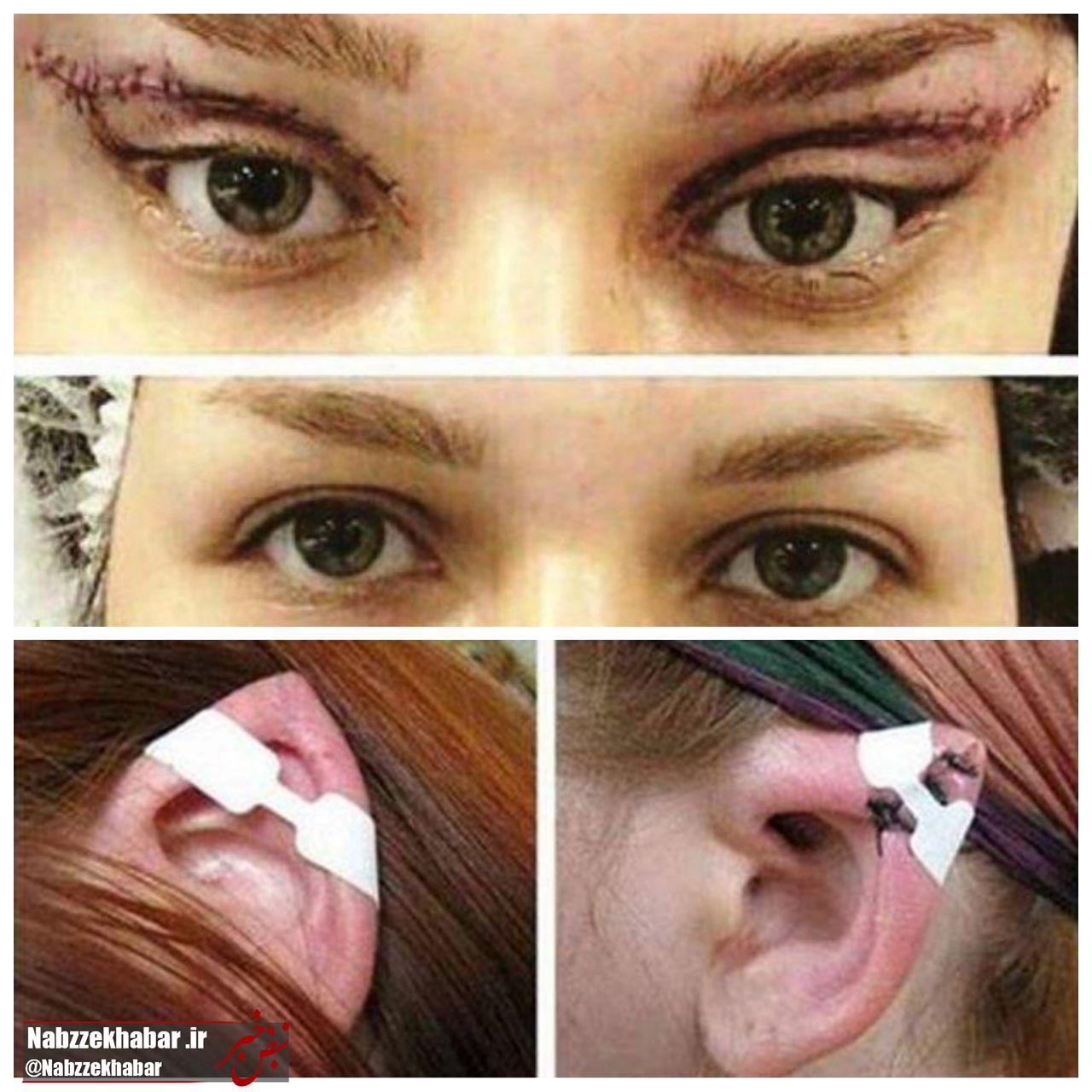 جراحی های تغییر رنگ چشم و شکل گوش قابل تعقیب کیفری است