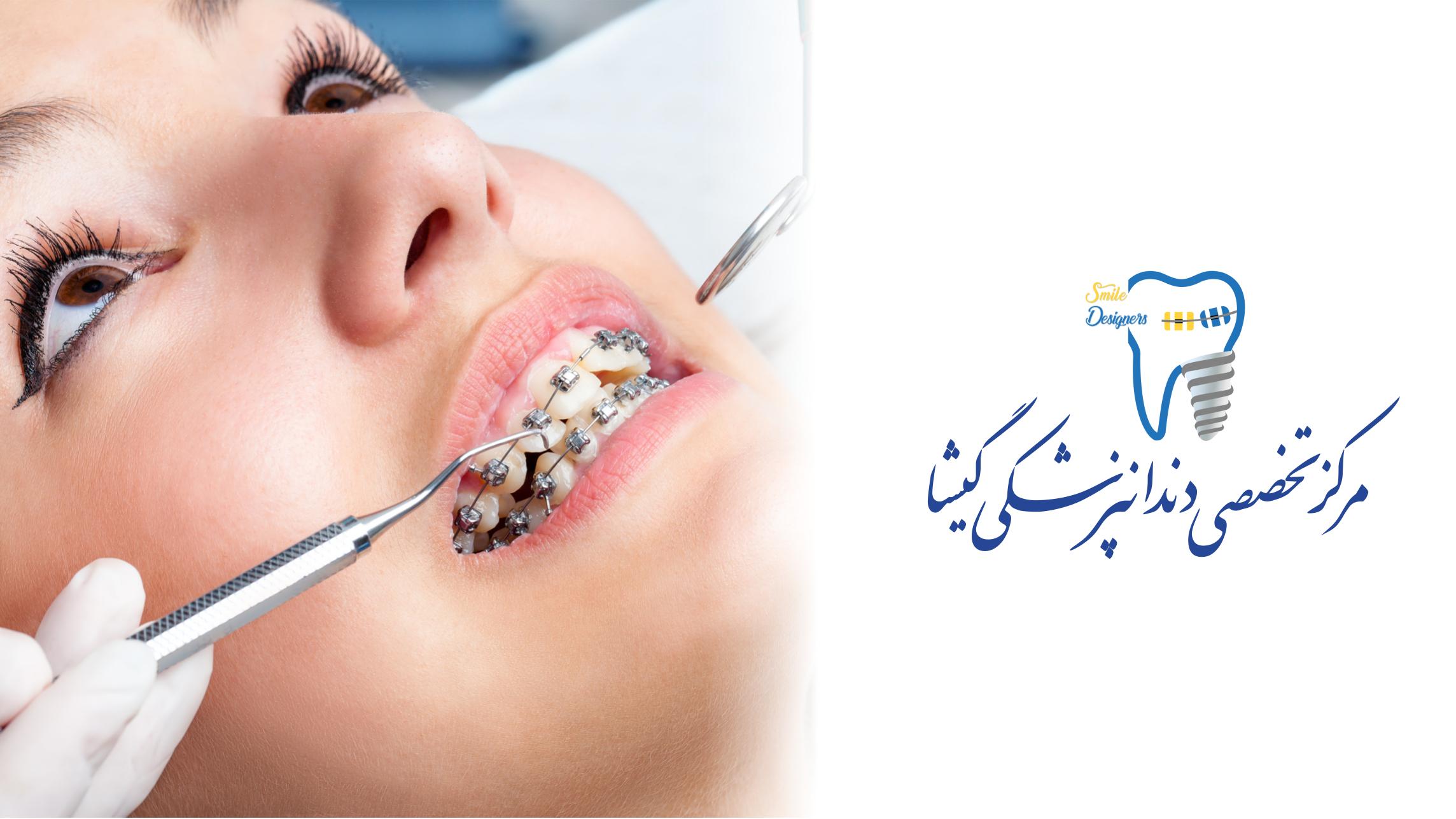 بهترین متخصص ارتودنسی در کلینیک گیشا تهران