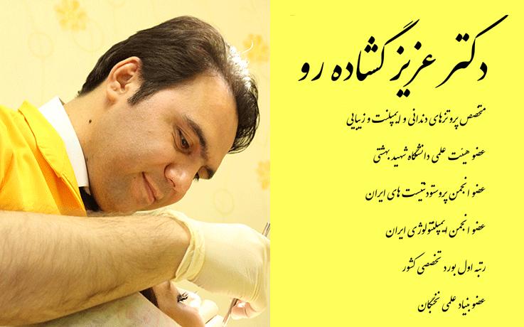 دکتر عزیز گشاده رو بهترین متخصص ایمپلنت دندان در تهران