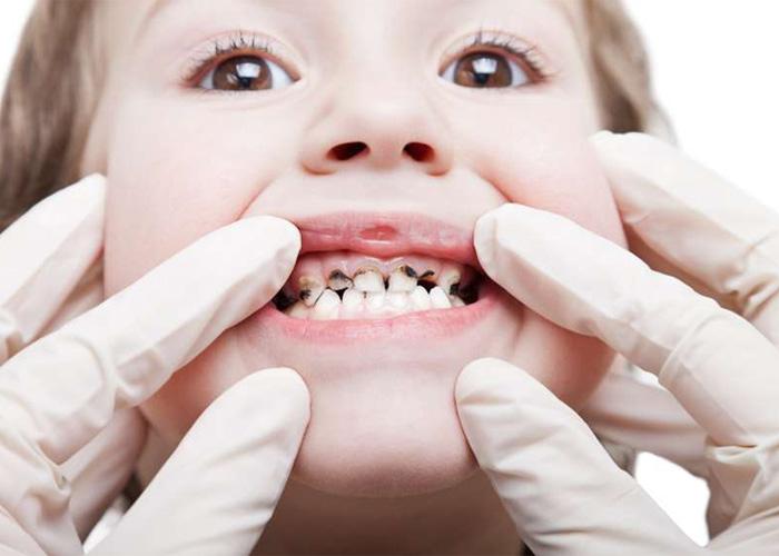 سیاه شدن دندان کودکان با قطره آهن