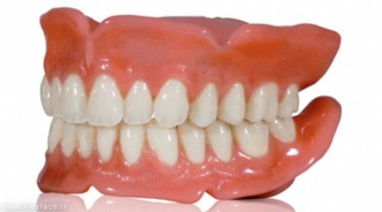دست دندان کامل
