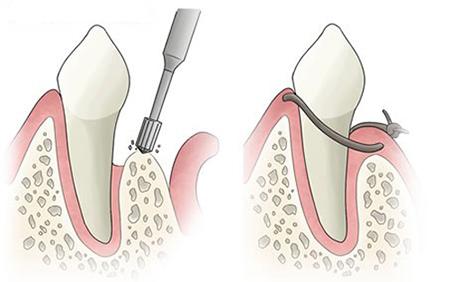 ایمپلنت های دندانی و تراش استخوان فک