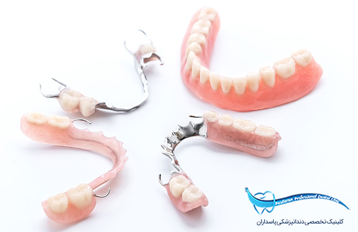 پروتز ها دندانی