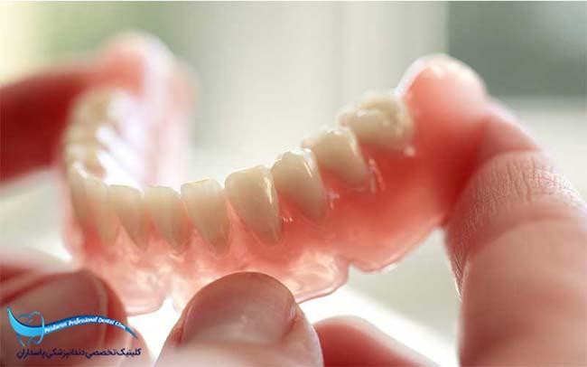 پروتزهای دندانی متحرک و ایمپلنت دندان