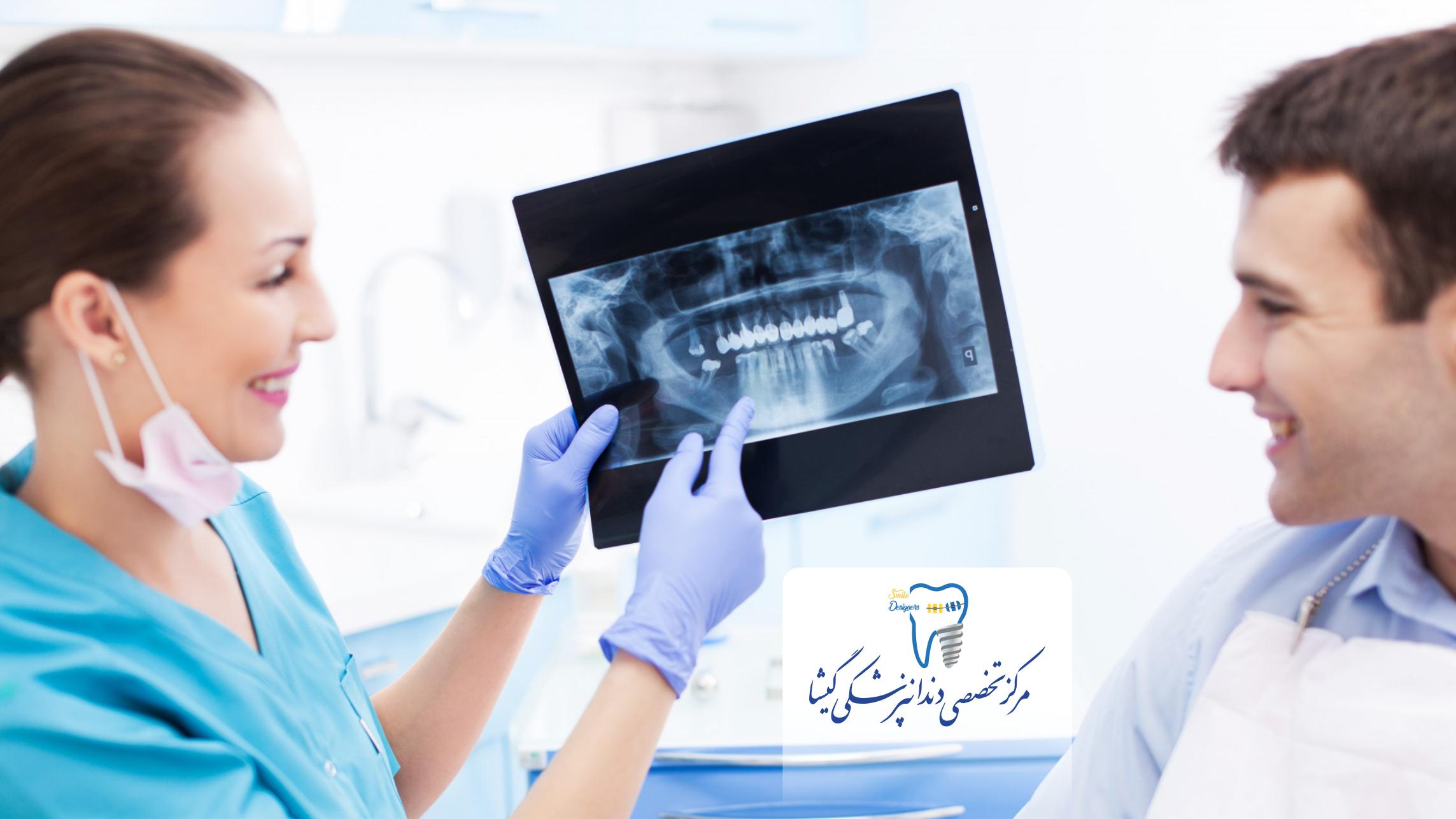بترین مطب ایمپلنت دندان