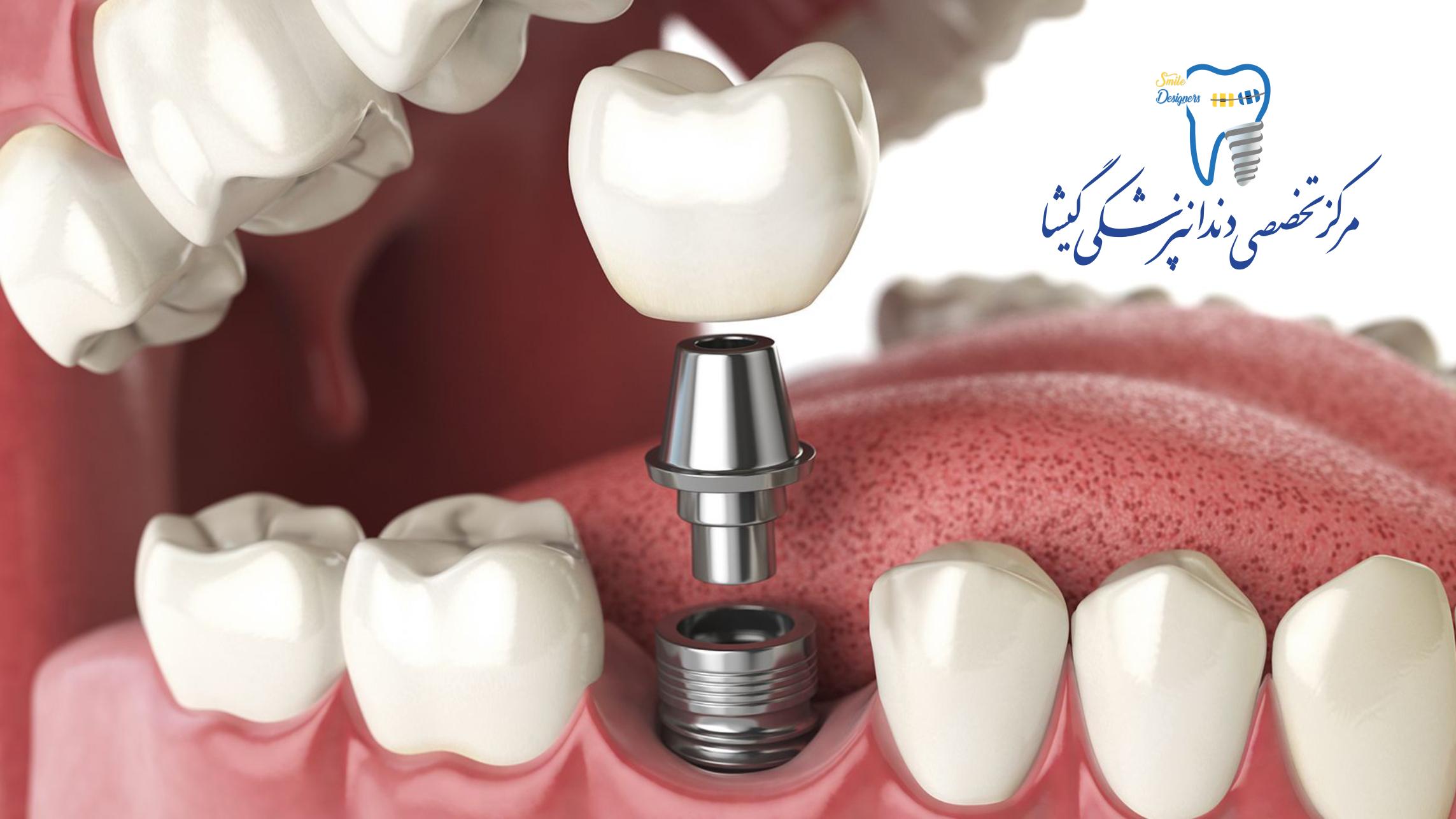 متخصص ایمپلنت دندان کلینیک گیشا