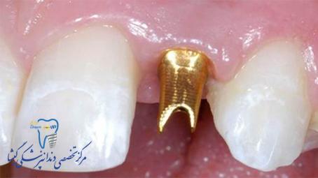 اباتمنت دندان چیست