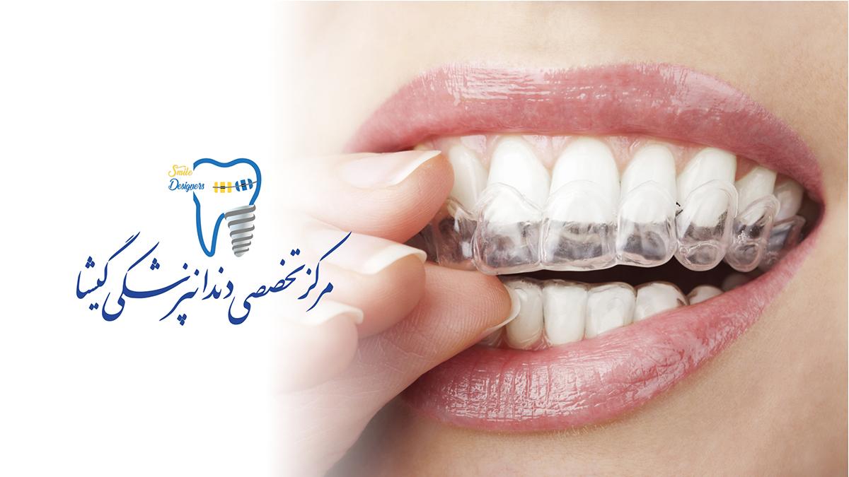 پر کردن دندان با اینویزالاینر