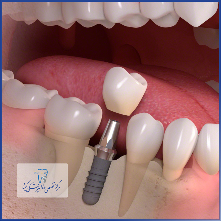 ایمپلنت فوری - جراحی کاشت ایمپلنت دندان