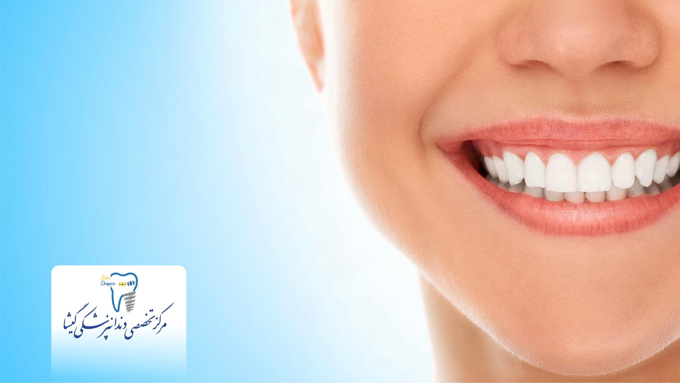 لامینیت سرامیکی - طراحی لبخند
