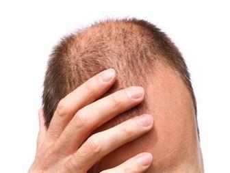 دارویی گیاهی برای تقویت پیاز مو