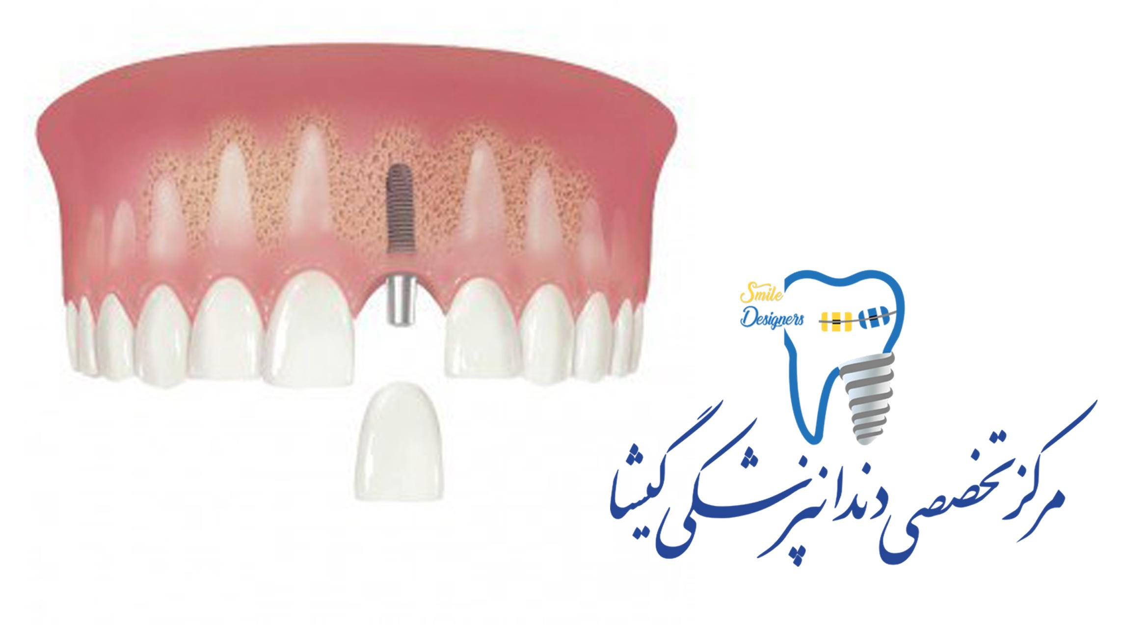 متخصص ایمپلنت دندان - دکتر گشاده رو
