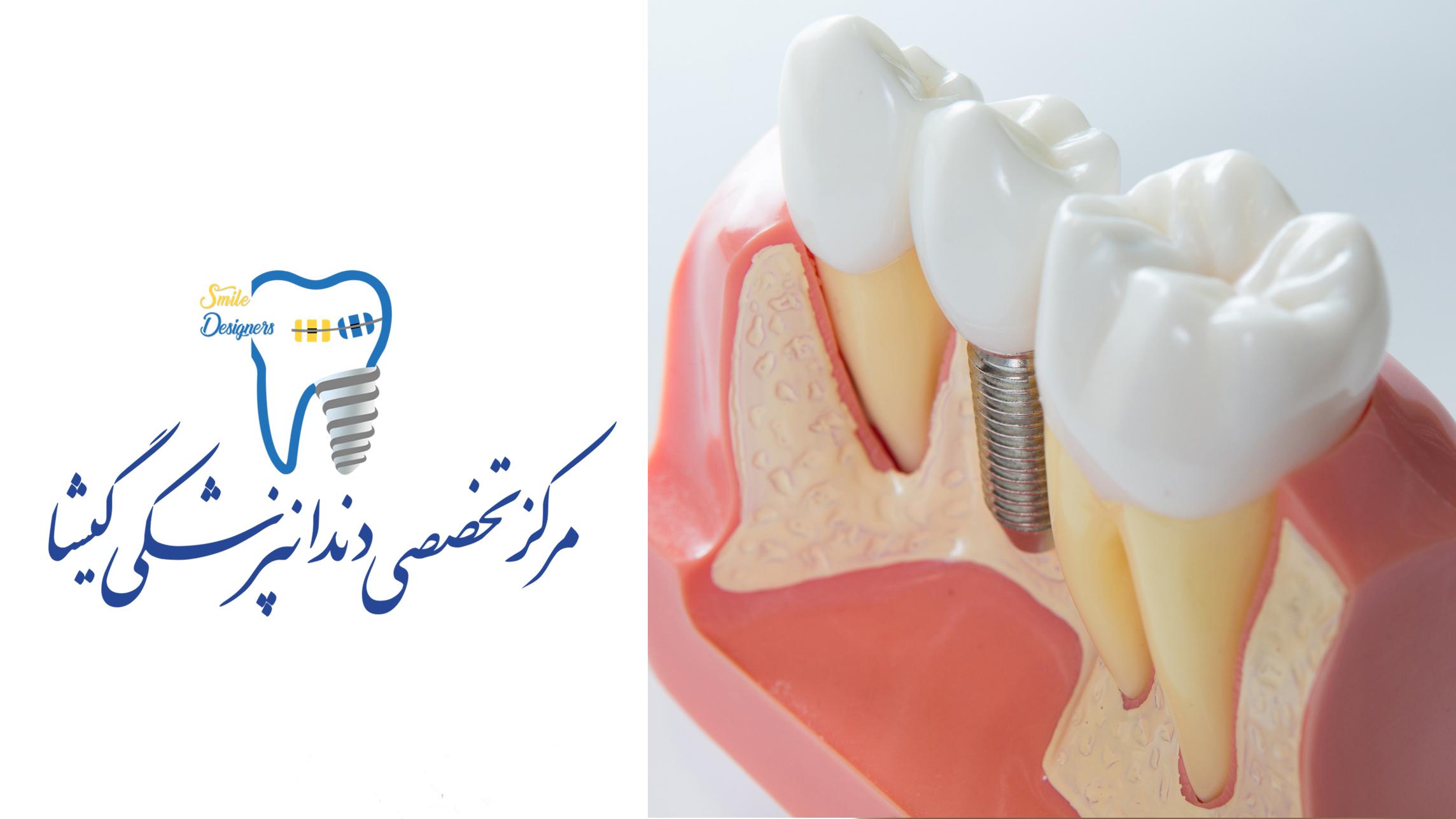 جاگذاری ایمپلنت دندان