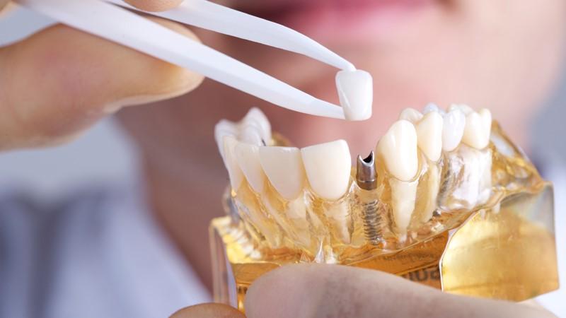 بهترین متخصص ایمپلنت برای کاشت ایمپلنت دندان
