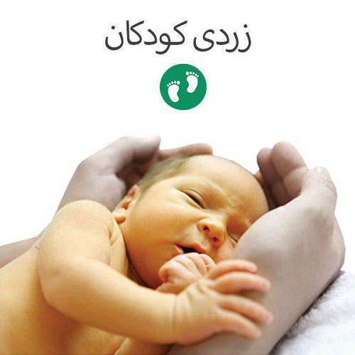 حجامت لاله گوش نوزاد برای درمان و کاهش زردی نوزاد