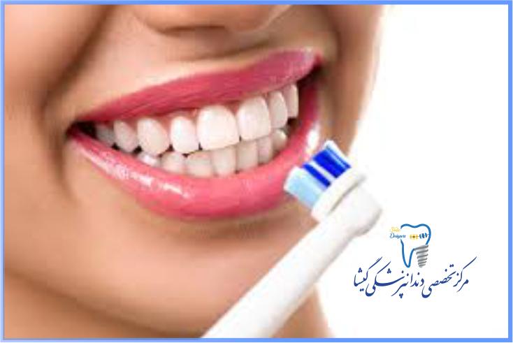 نگهداری از ایمپلنت دندان