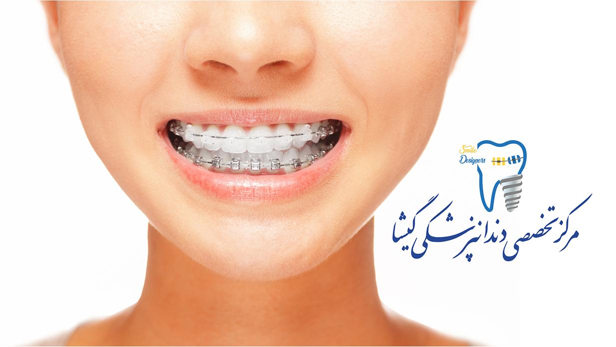 ارتودنسی و زیبایی دندان