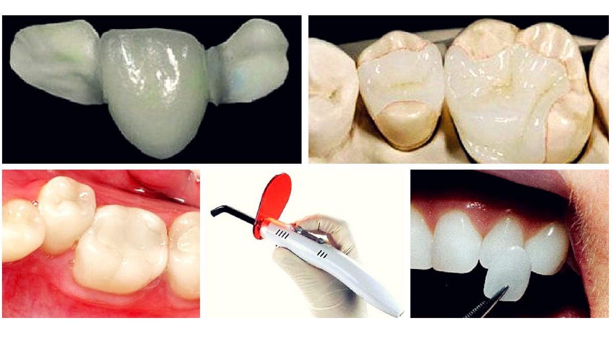 انواع کلمپوزیت دندان
