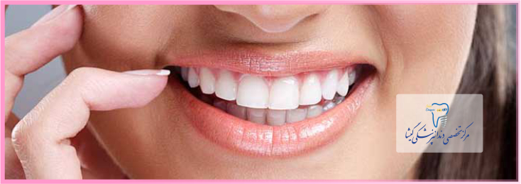 تفاوت ایمپلنت و دندان طبیعی