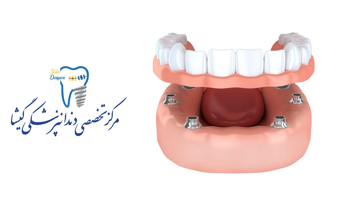 اوردنچر دندان