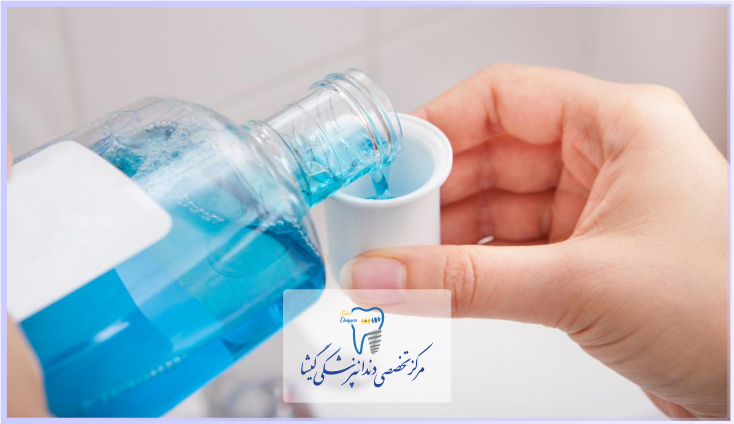 مراقبت های پس از ایمپلنت دندان