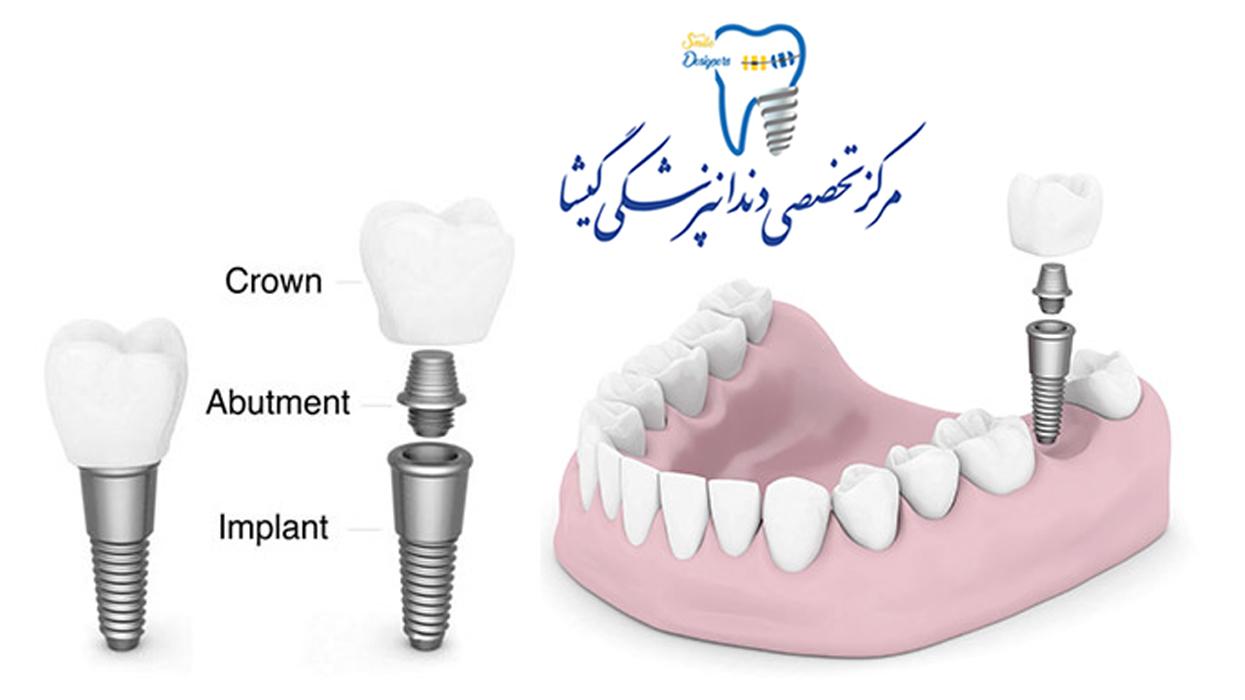 قسمت های مختلف ایمپلنت دندان