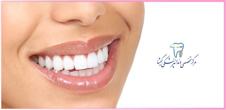 بهترین متخصص امیپلنت دندان