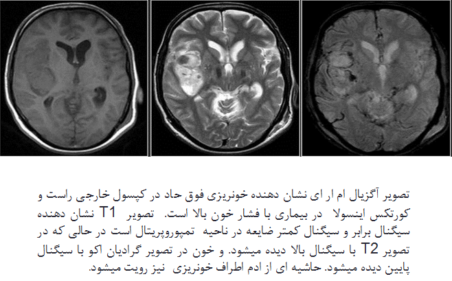 ارزیابی خون ریزی های مغزی در MRI