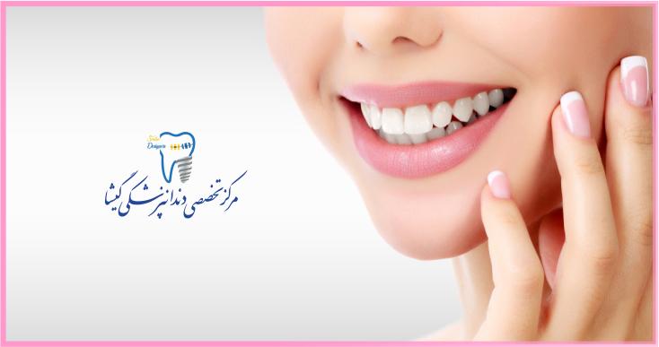 دندانپزشکی زیبایی و لمینیت دندان