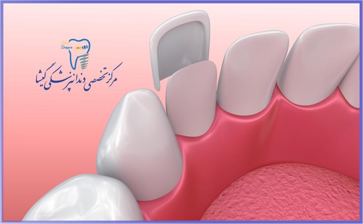 تناسب لمینیت دندان