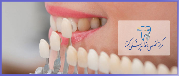 لمینیت دندان و زیبایی