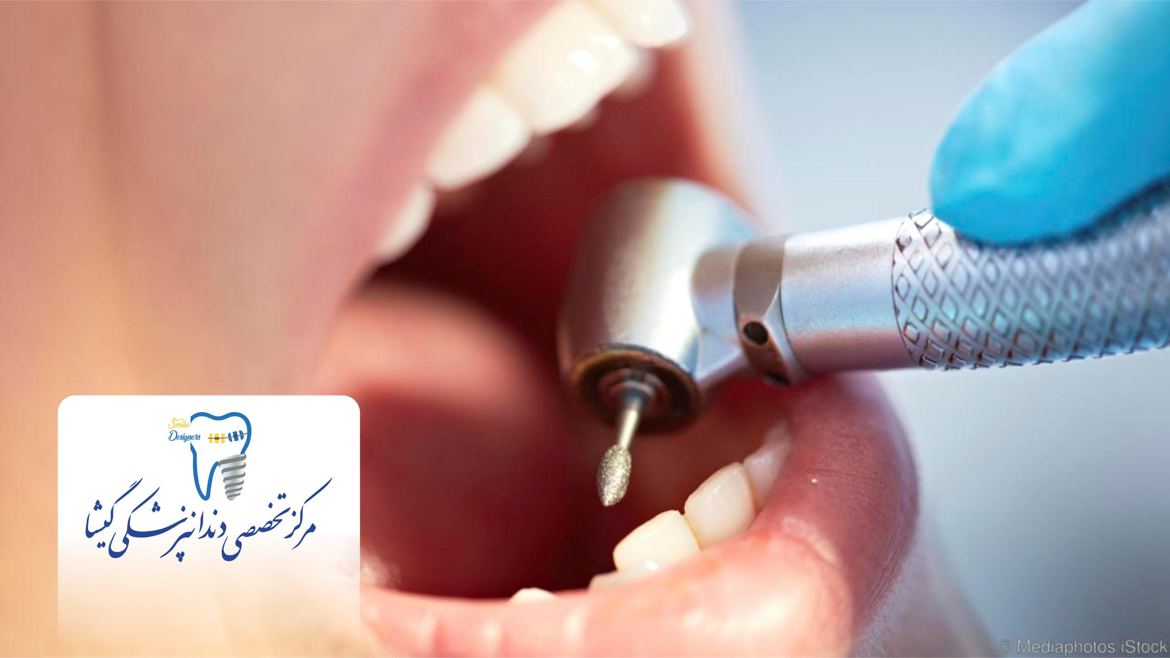 پوسیدگی دندان و تیرویید
