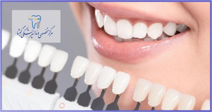 اصلاح بدرنگی دندان با لمینیت نازک